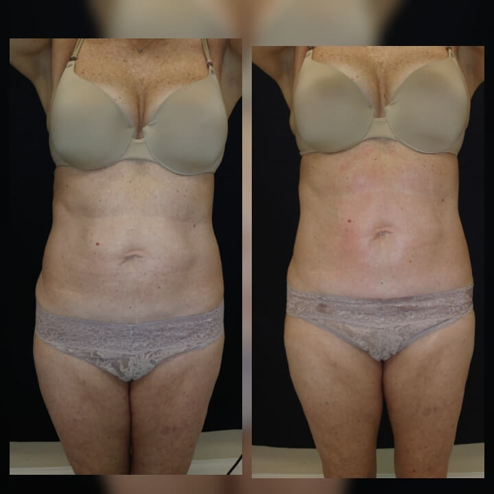 Nonsurgical Body Sculpting that works! Before and after 2 Posh Body Slim Body Contouring Sessions - Treatment Goal Fat Reduction &