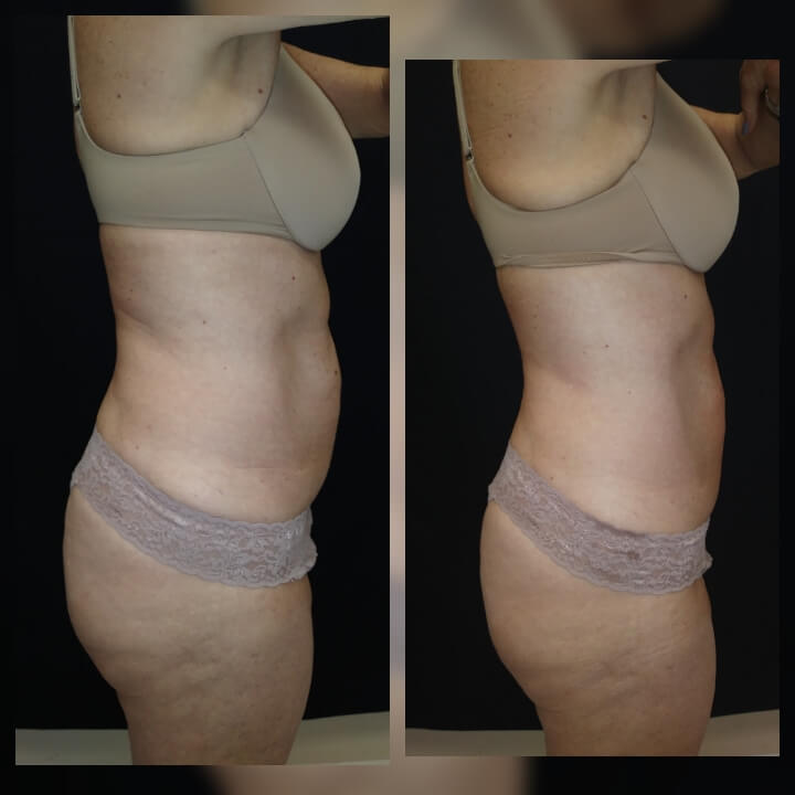 Nonsurgical Body Sculpting that works! Before and after 2 Posh Body Slim Body Contouring Sessions - Treatment Goal Fat Reduction & Skin Tightening