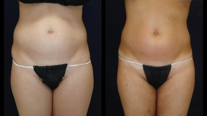 The latest in nunsurgical Body Sculpting - Before and after 3 Posh Body Slim Body Contouring Sessions - Treatment Goal Fat Reduction & Skin Tightening