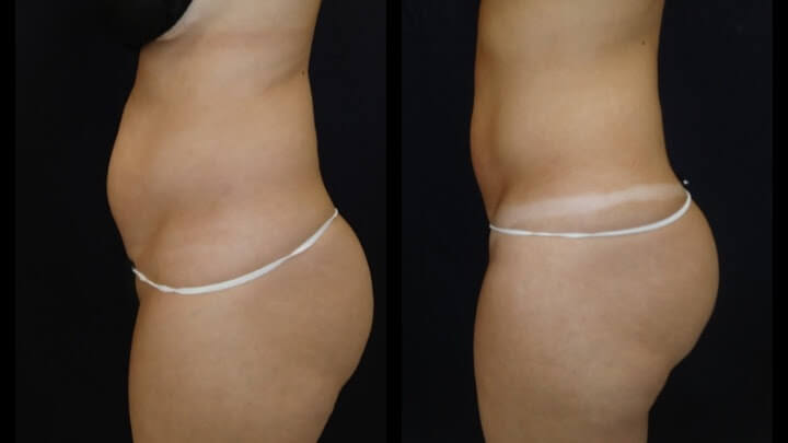 The latest in nunsurgical Body Sculpting - Before and after 3 Posh Body Slim Body Contouring Sessions - Treatment Goal Fat Reduction & Skin Tightening.