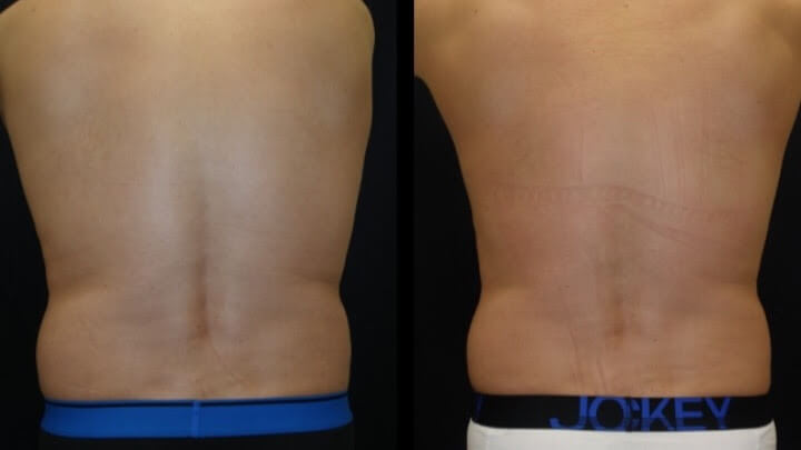 Before and after 2 Posh Body Slim Body Contouring Sessions - Treatment Goal Fat Reduction &