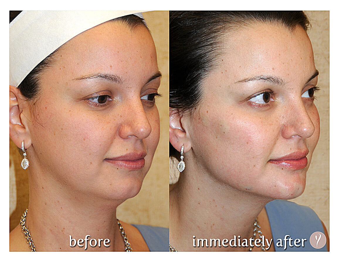 The Y Lift Liquid Facelift requires no surgery - Young woman's side view before and after