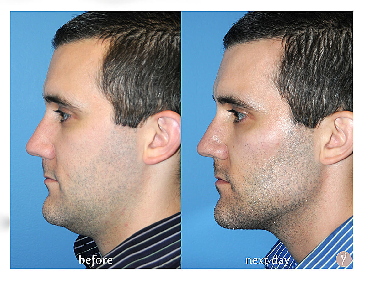 Y Lift for men is the latest in facial contouring without surgery
