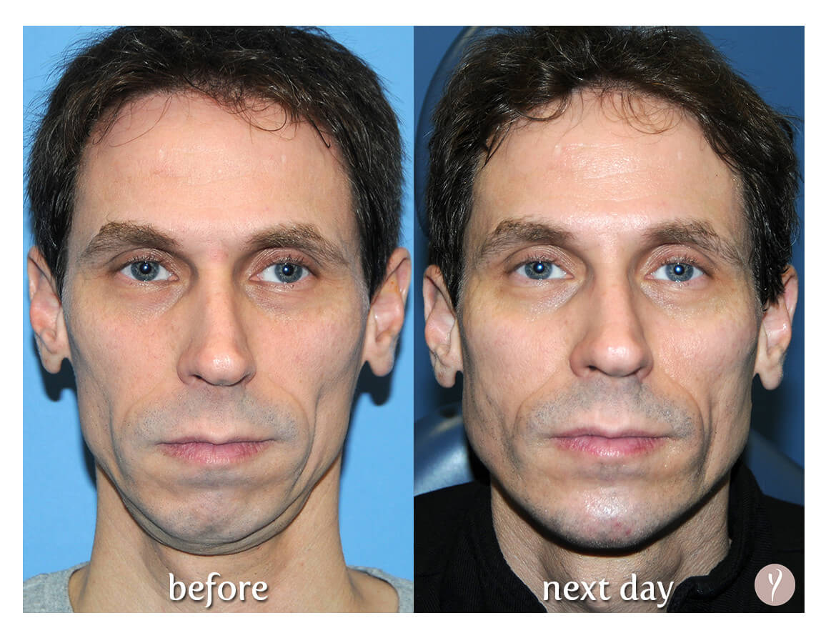 Before and after Y Lift for facial rejuvenation, volume loss, contouring and lifting.