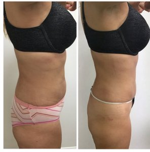 Get Results with the Posh Body Slim Body Sculpting System. Before and after 1 Posh Body Slim Body Contouring Session - Treatment Goal Fat Reduction & Skin Tightening