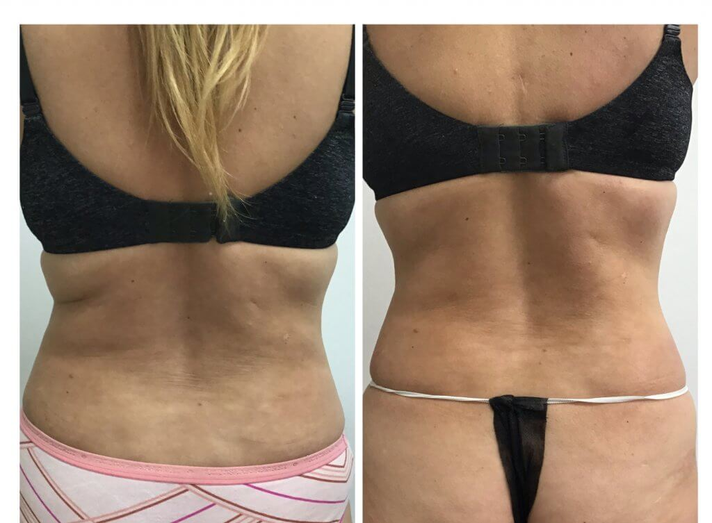 Get Results with Nonsurgical Body Sculpting Before and after 1 Posh Body Slim Body Contouring Session - Treatment Goal Fat Reduction & Skin Tightening