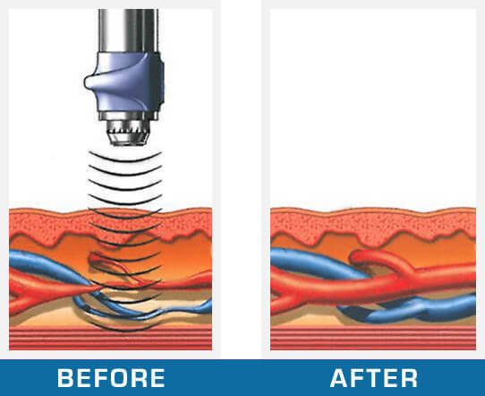 GAINSWave Therapy in Atlanta Georgia