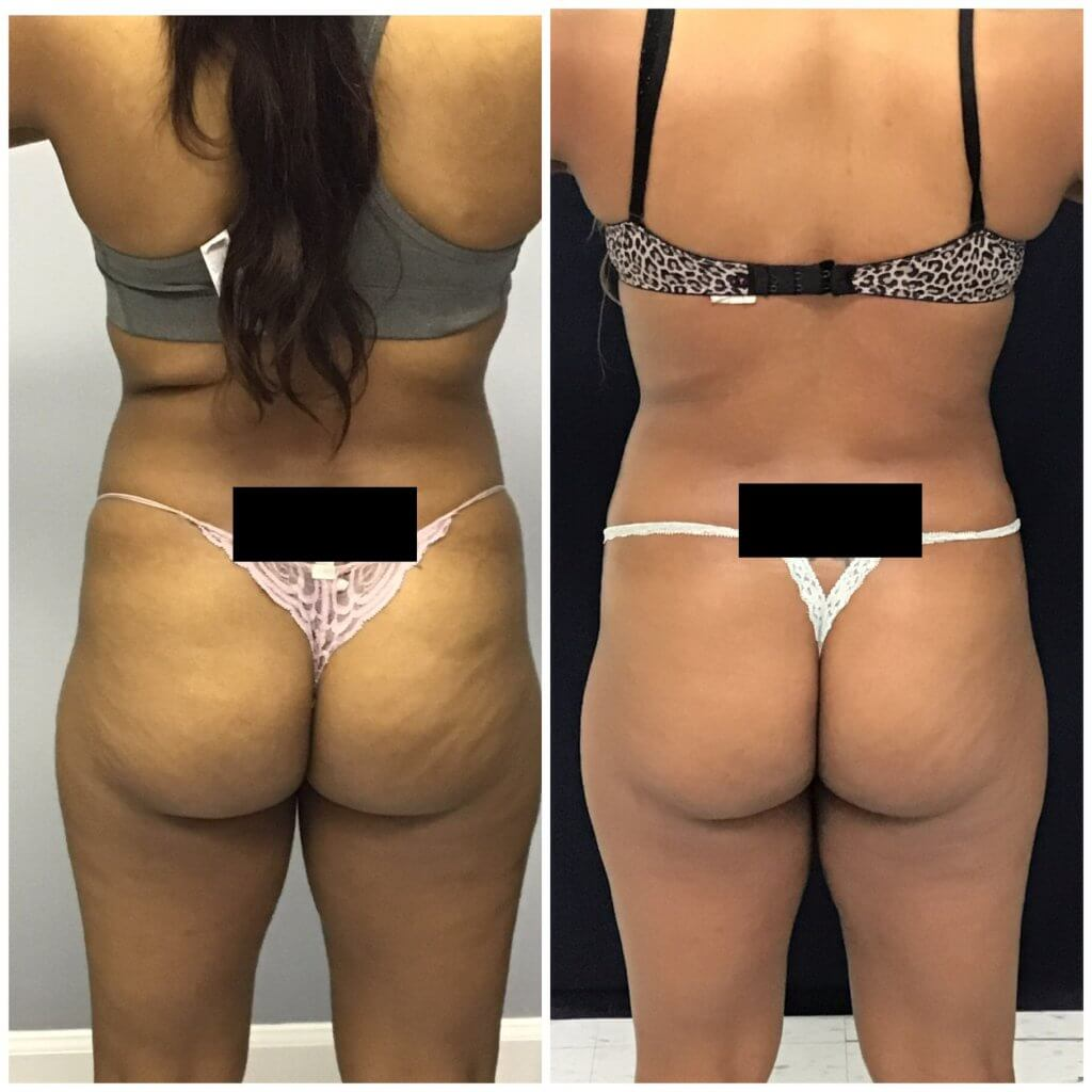 Before and after 4 Posh Body Slim Body Sculpting Treatments for Fat Reduction and Skin Tightening as well as lifting and toning