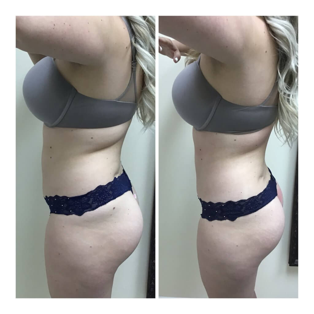 Nonsurgical Body Sculpting Image - Before and After One Posh Body Slim Treatment