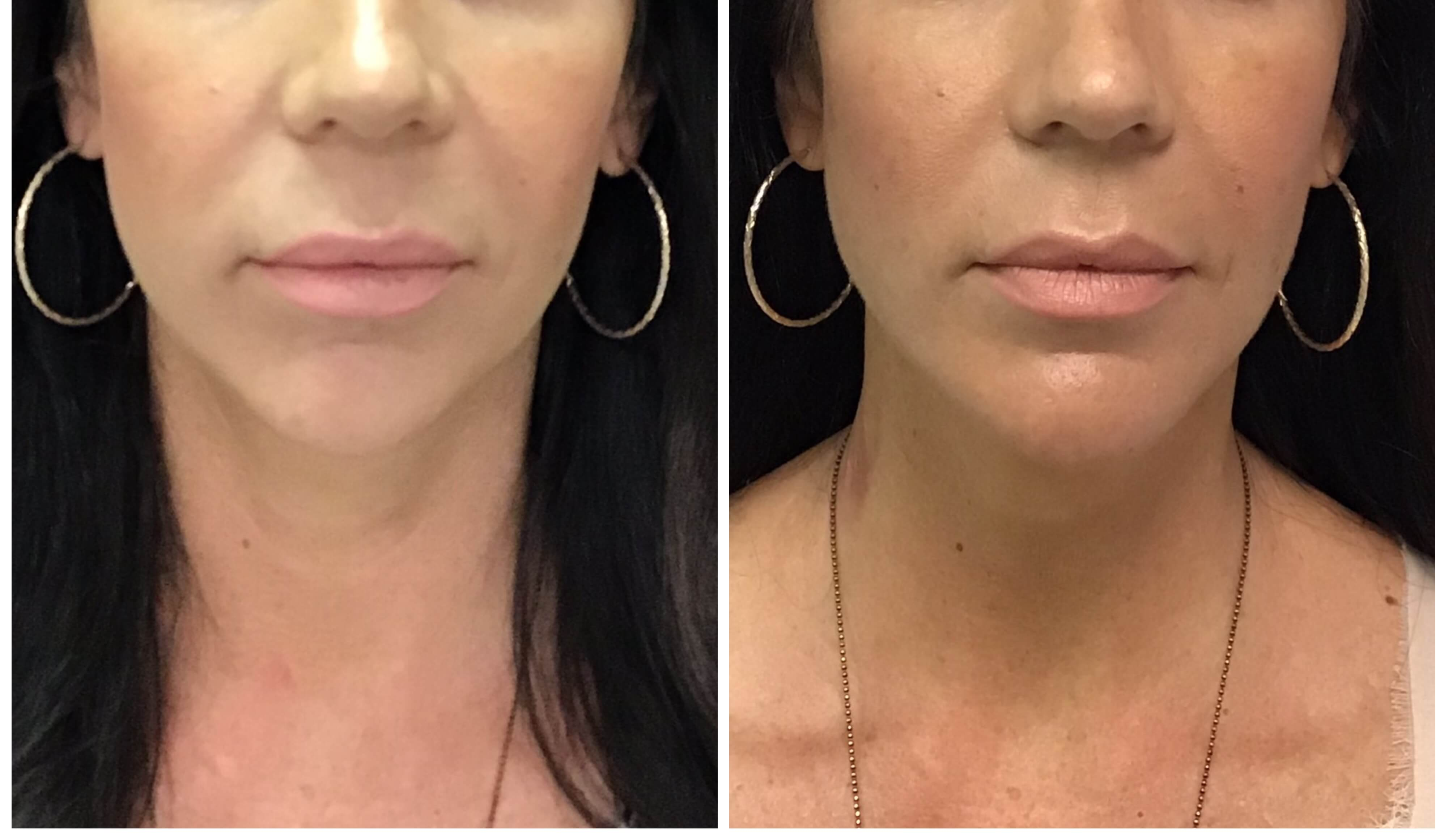 Before and after Y Lift by Dr. Monte Slater
