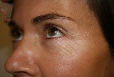 CoolPeel Laser Treatments by Dr.Monte Slater in Atlanta https://www.cartessaaesthetics.com/tetra-co2