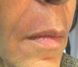 After coolpeel laser treatment