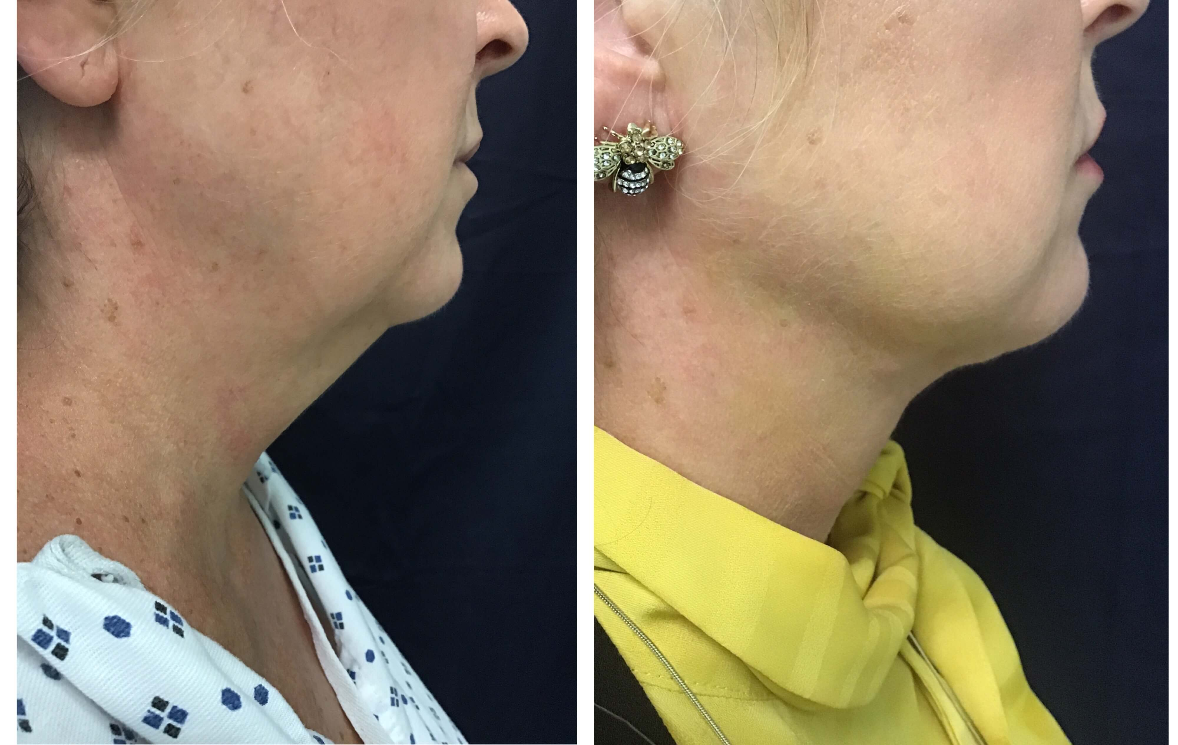 Before and After Liposuction and ThermiTight of the chin amazing results (7-days post-op)