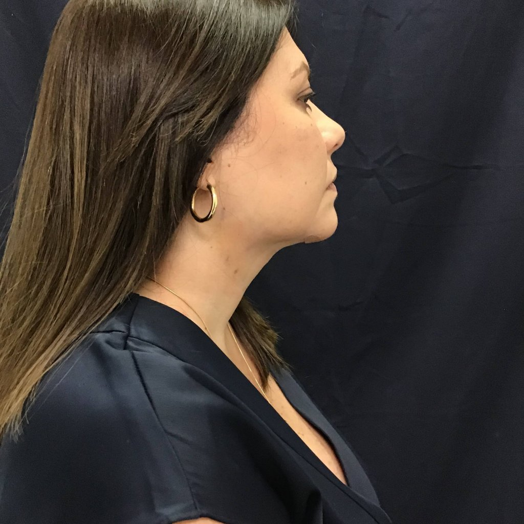 After Liposuction and ThermiTight of the chin amazing results (2-days post-op)