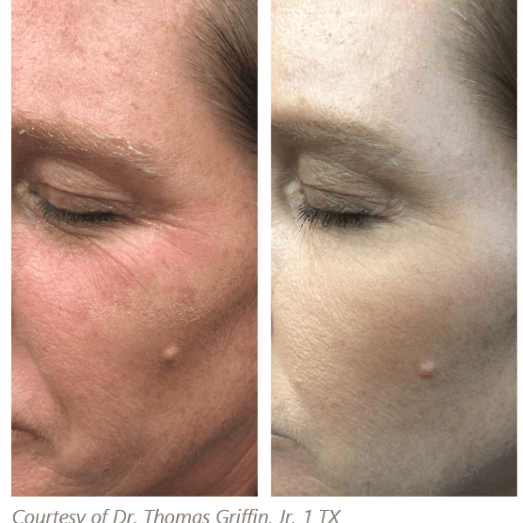 Subnovii Plasma Pen to diminish wrinkles