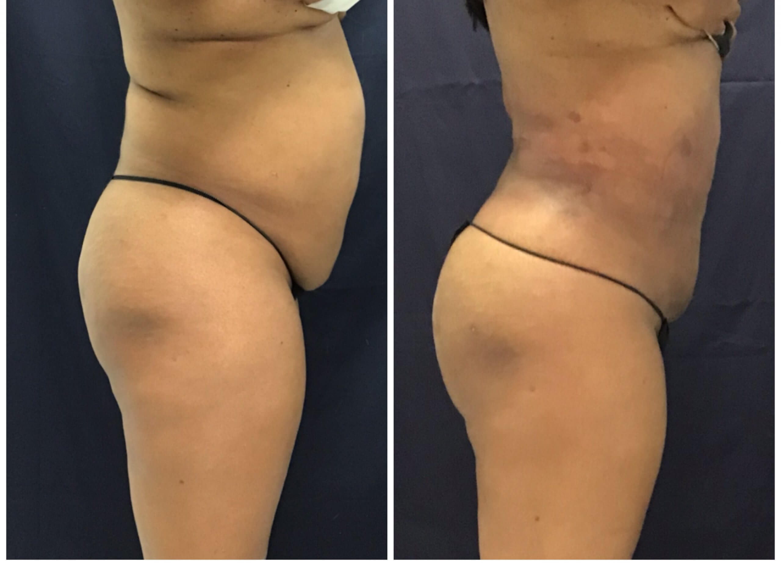 Before and after Brazilian Butt Lift - Liposuction with Thermitight for skin Tightening before and after 6 weeks