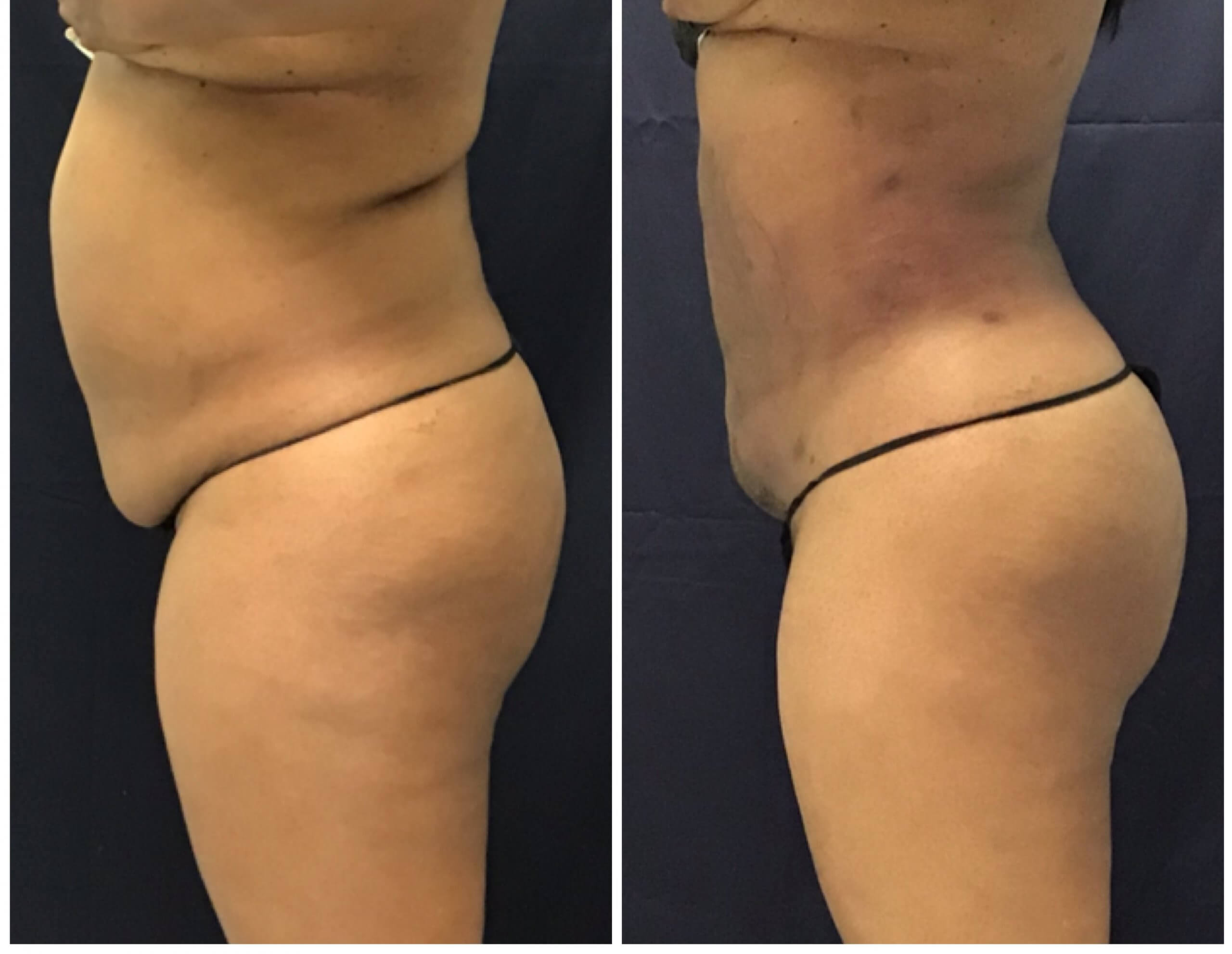 Before and after 6 Weeks PureLipo with ThermiRF for skin tightening and fat transfer to the buttocks (Brazillian Butt Lift)