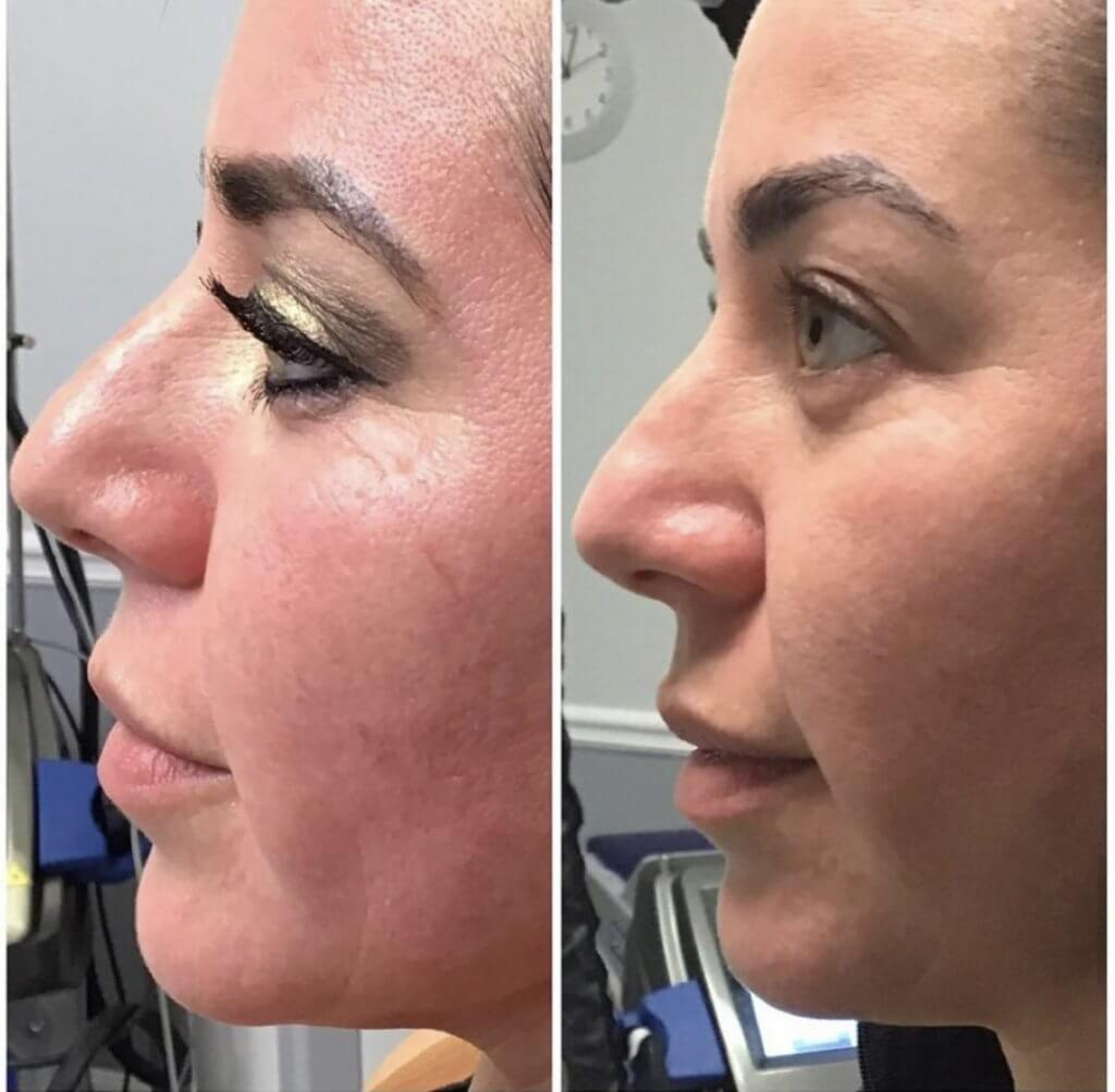 Before and Three Weeks After Receiving the CoolPeel Laser Treatment with Dr. Monte Slater