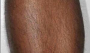 Motus AX Laser Hair Removal System