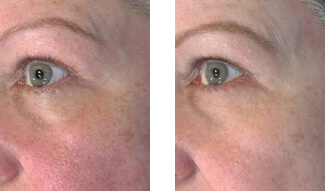 Patient Before and After the Vivace Treatment