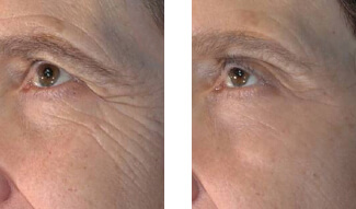 Patient Before and After the Vivace Treatment offered at Aesthetic Body Sculpture Clinic in Atlanta and Warner Robins