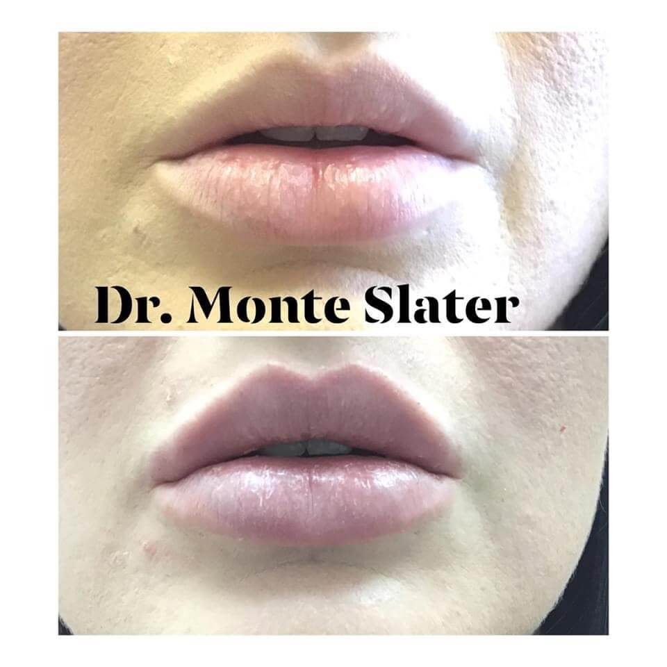 Patient Before and After Kysse Lip fil.er Aesthetic Body Sculpture Clinic in Atlanta and Warner Robins