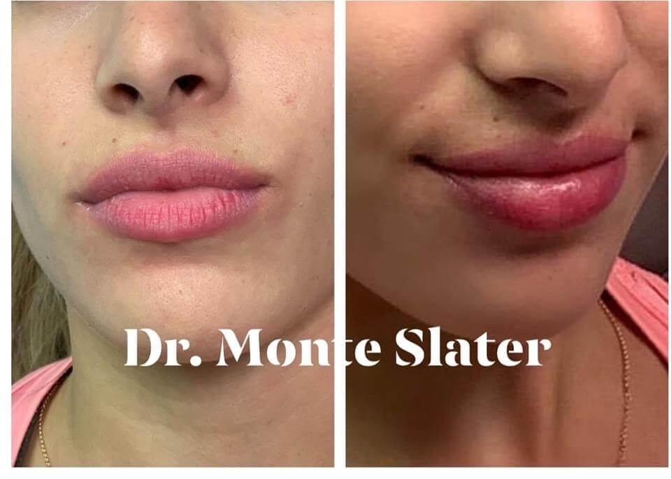 Before and After Kysse Lip fil.er with Dr. Monte Slater in Atlanta Georgia