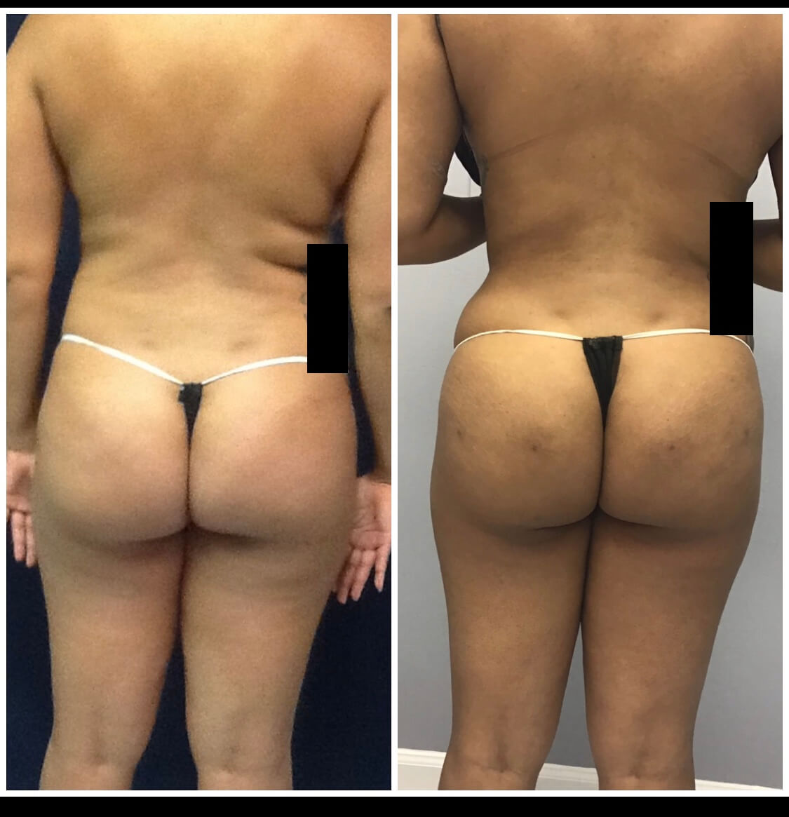 Before and After 4 weeks of receiving Liposuction and Fat Transfer/Brazilian Butt Lift