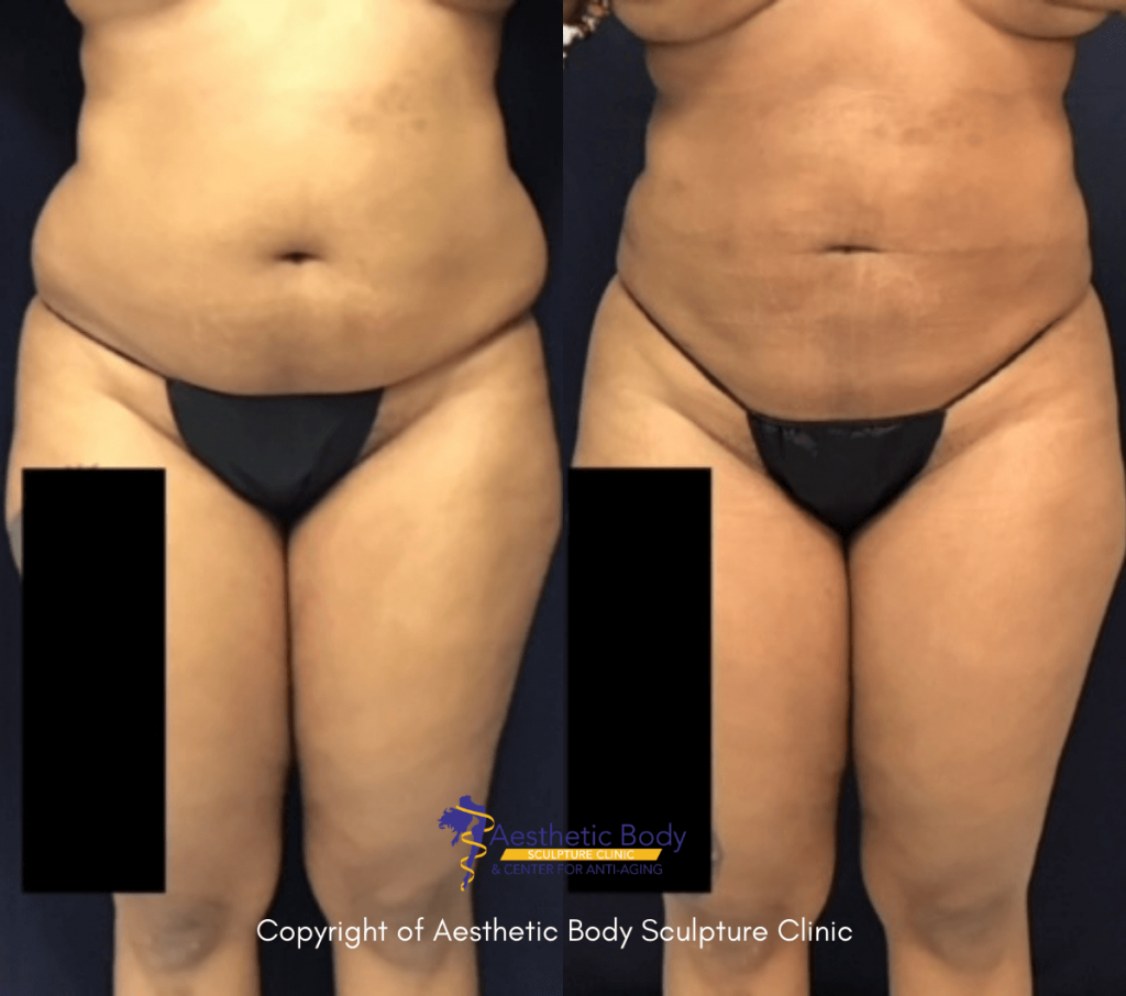 Before and after 2 months Liposuction of abdomen, lower back, & flanks