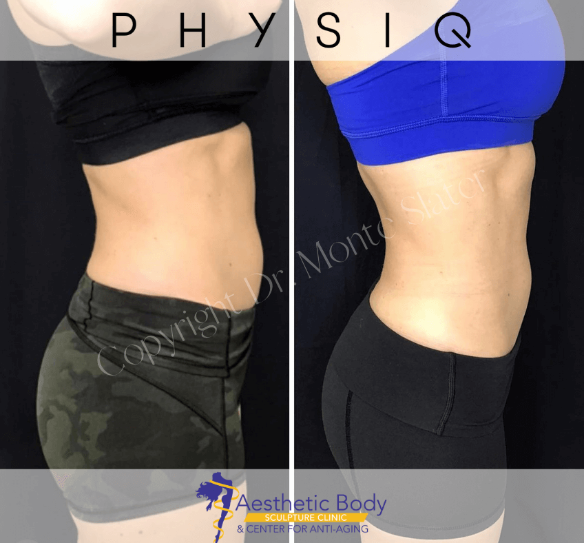 Before and After PHYSIQ Body Sculpting at Aesthetic Body Sculpture Clinic in Atlanta