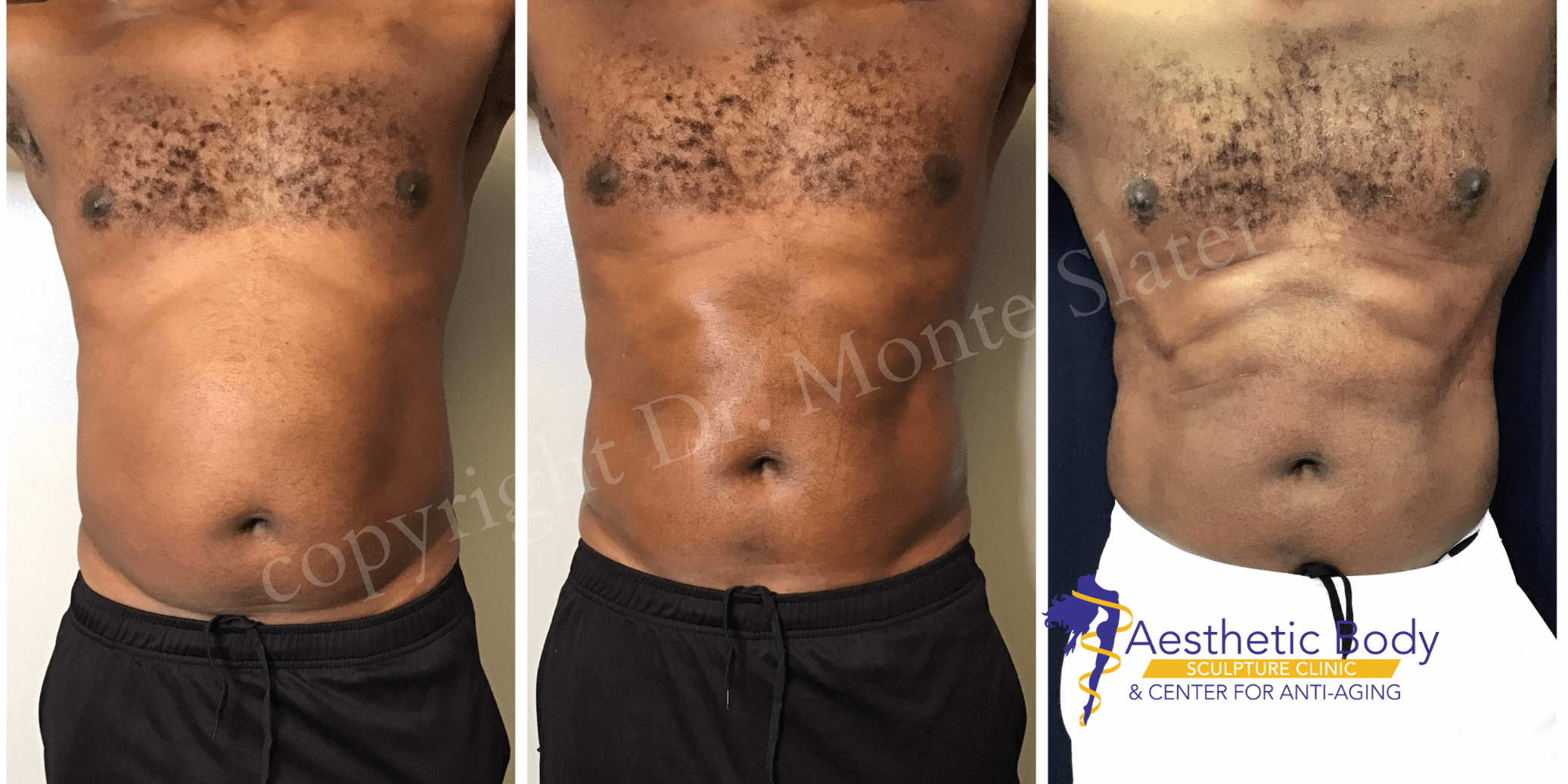Before and After 2 PHYSIQ Body Contouring Treatments with Dr. Monte Slater