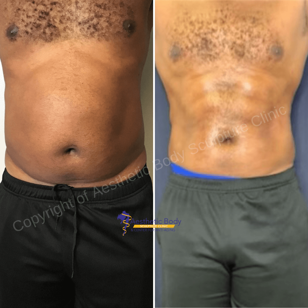"""Dr. Slater""""s Patient Before and After 5 PHYSIQ Treatments"""