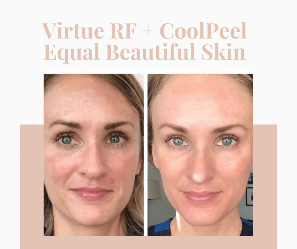 CoolPeel and Virtue RF Facial treatment in Atlanta