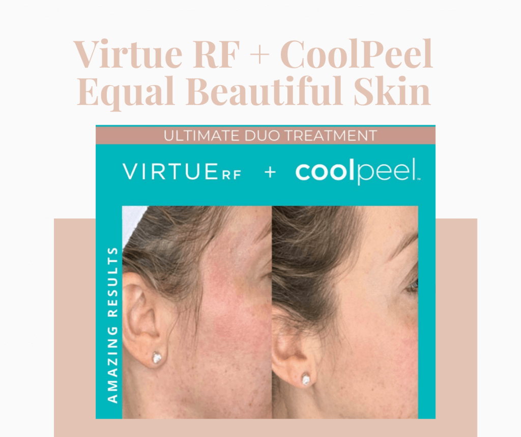 Before and After Coolpeel laser treatments