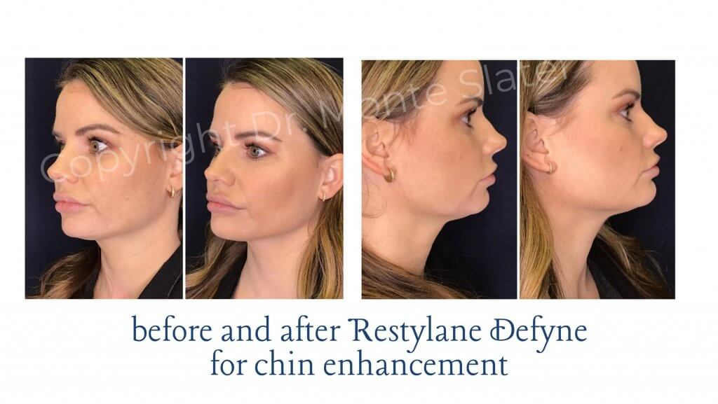 Before and After Restylane Defyne for Chin Enhancement