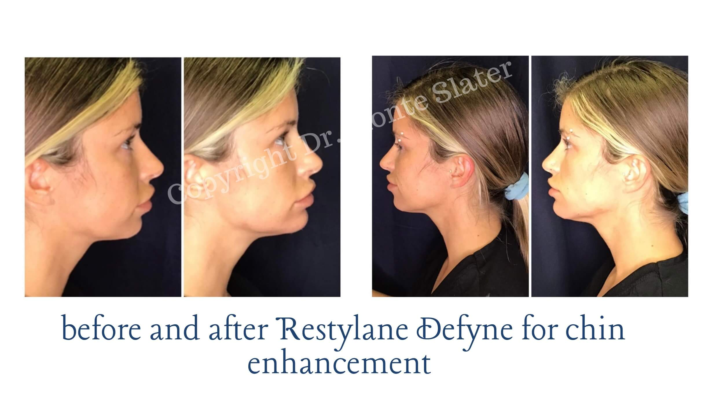 Before and After Restylane Defyne with Dr. Monte Slater