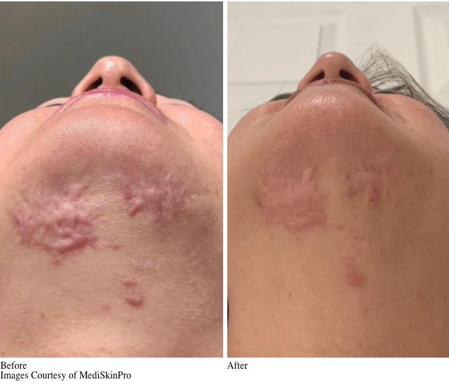 Before and After VirtueRf Microneedling Treatment for Skin Rejuvenation & Skin Tightening