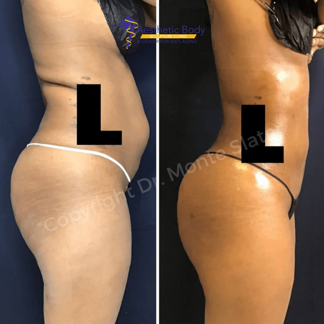 Before and after liposuction and fat transfer to the buttocks