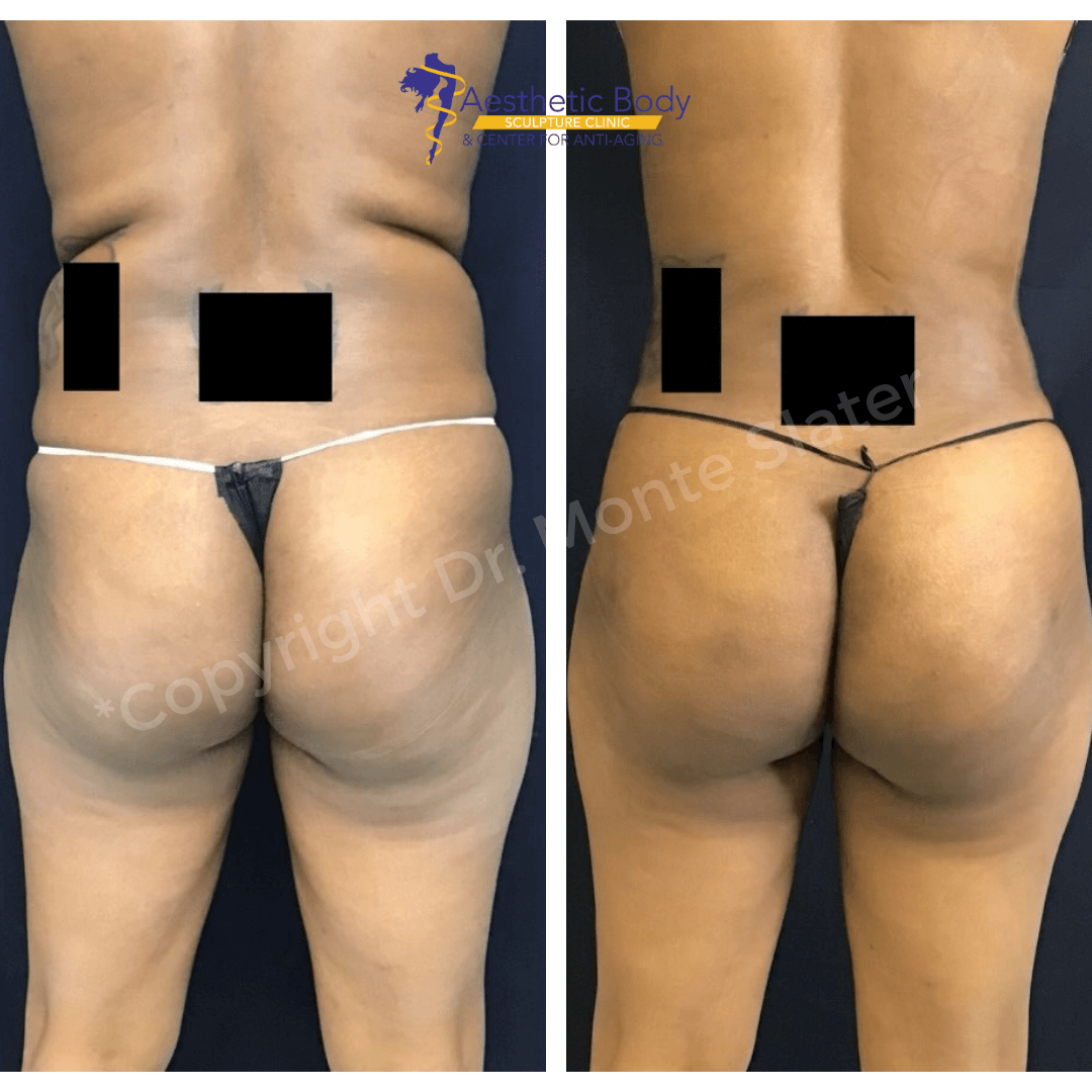 before-and-after-8-weeks-post-lipo-of-abdomen-flanks-low-mid-back-with-gluteal-fat-transfer-3