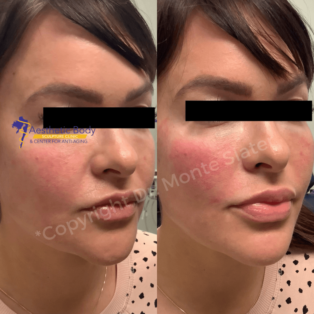 Before and after only one Syringe of Restylane Contour to the cheeks
