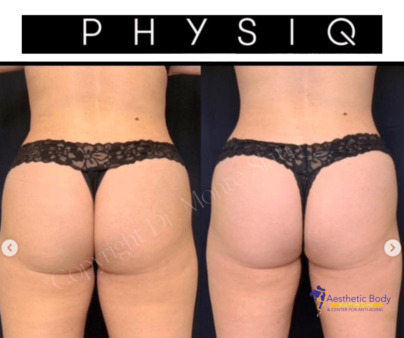 *Real Patient Before and after 3 PHYSIQ Treatments