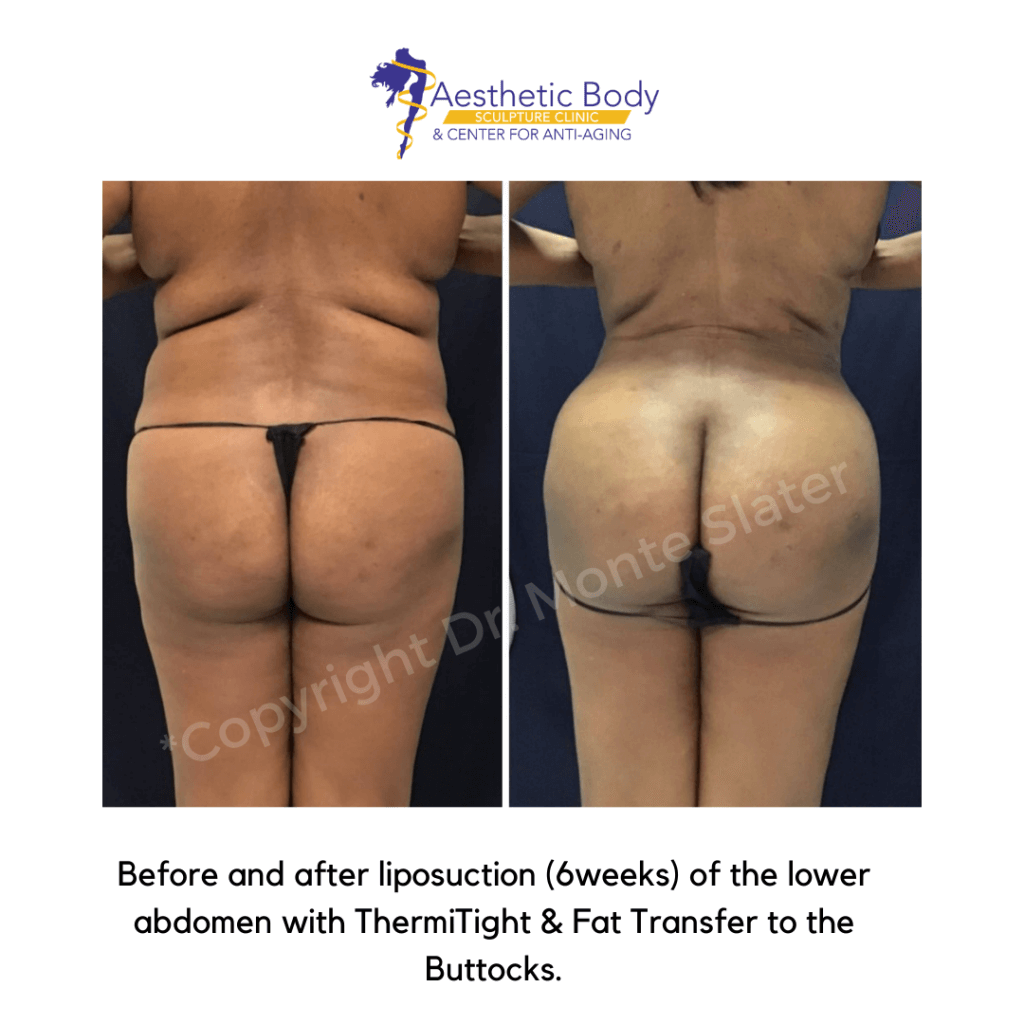 Before and after liposuction and Thermigth and gluteal fat transfer