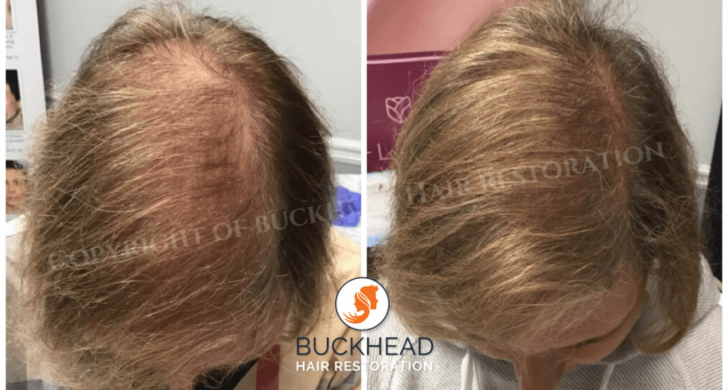 Before and 4 Months after 1 TruPRP Treatment
