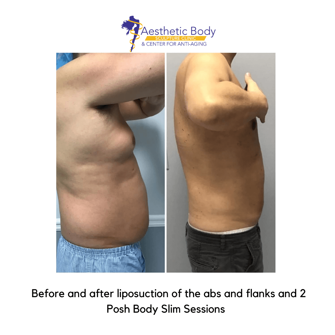 Before and after liposuction of abs and flanks and Posh Body Slim
