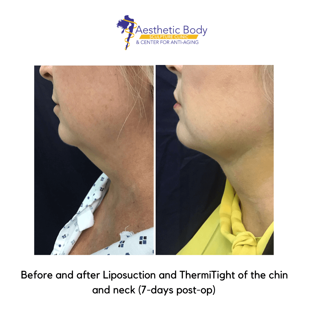 Before and 7 days post op - liposuction of the chin and neck