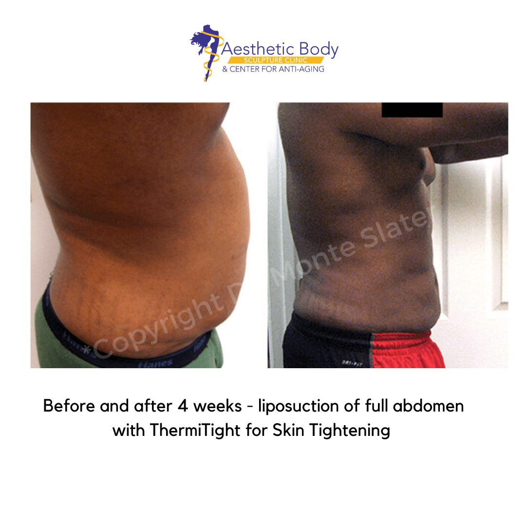 Before and after 4 weeks of liposuction with thermitight