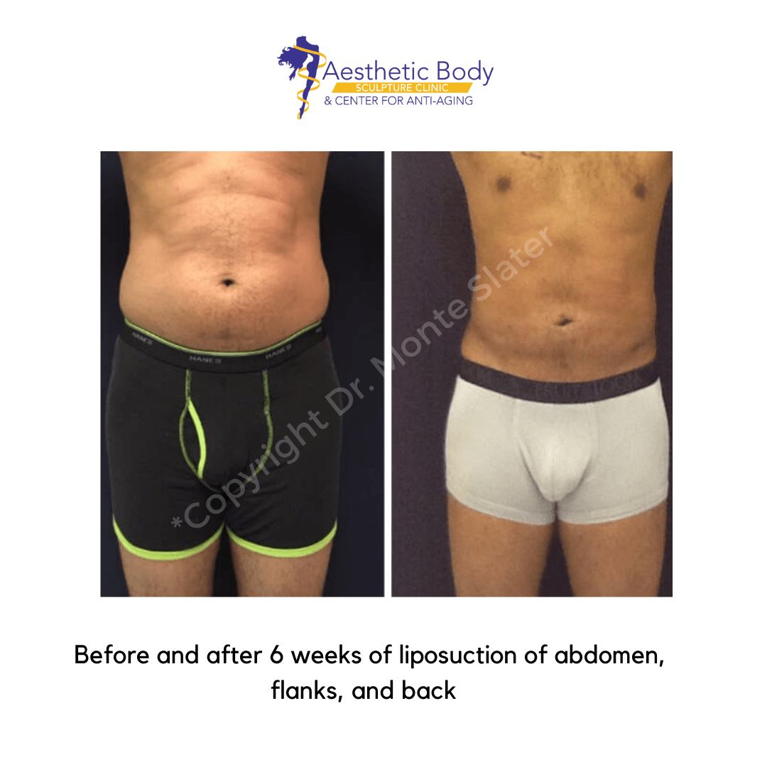 Before and after 6 weeks of liposuction of the abdomen, back, and flanks