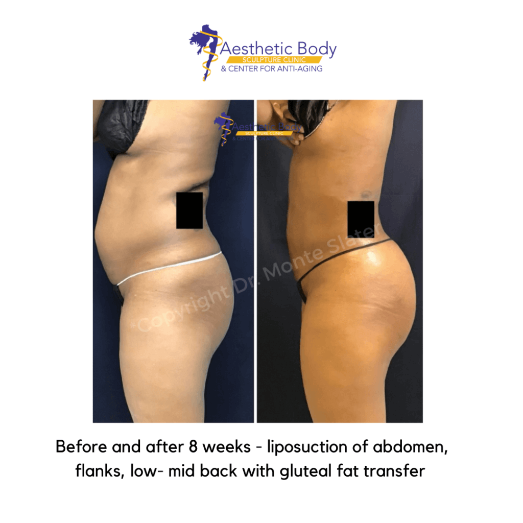 Before and after liposuction and gluteal fat transfer