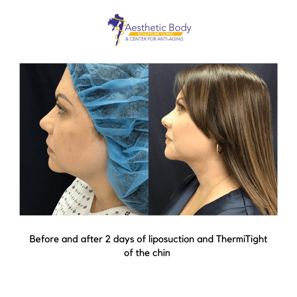 After Liposuction and ThermiTight of the chin (2-days post-op)
