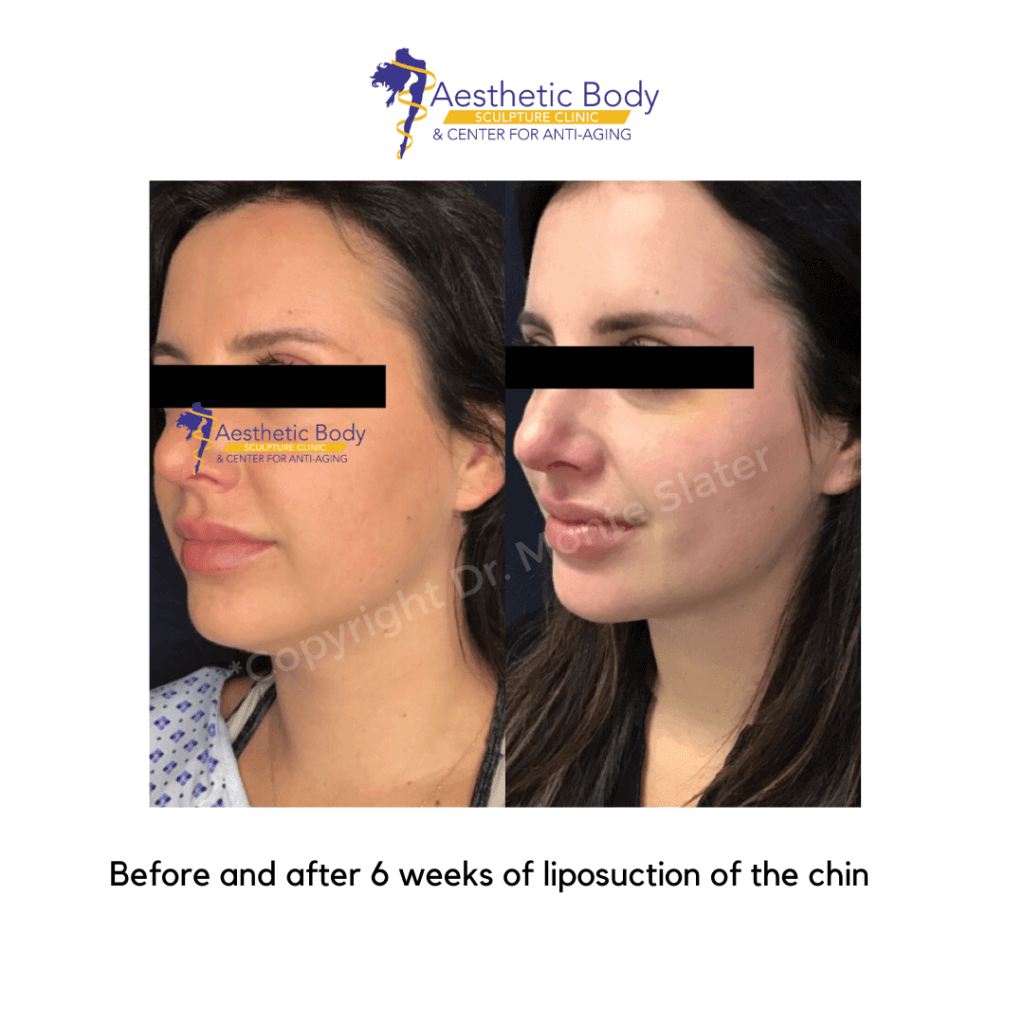 Before and after 6 weeks of liposuction of the chin